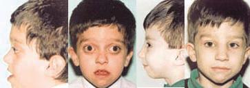 Paciente de 6 años con enfermedad de Crouzon