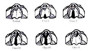 Clasificación de Veau para las fisuras labio-palatinas