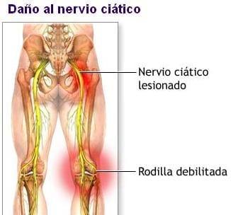 Daño del nervio ciático