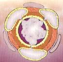 bronquitis-fig5