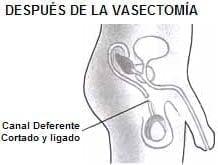 Organos de Reproducción Masculina, después de la vasectomía