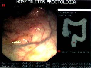 Pólipo de extensión lateral