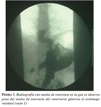 figura1-radiografia