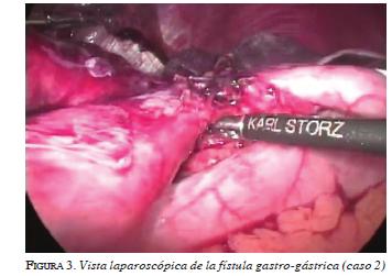 figura3-vista-laparoscopica