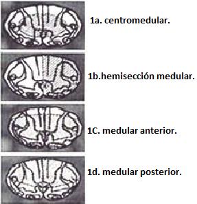 Diagnóstico clínico de síndromes medulares