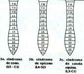 Síndromes de cono y cauda equina