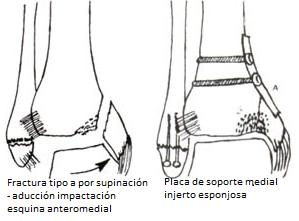 Fijación con placa de soporte e injertos óseos