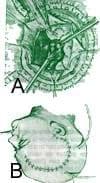 Craneotomía