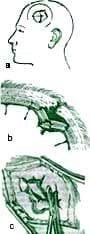 Craneotomía Osteoclástica