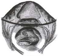 Fijacion de la cúpula vaginal con una cinta