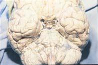 Aspecto lechoso de la meninge sobre tronco
