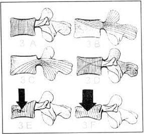 Corte sagital de vértebras con esquematización de trabéculas.