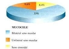 Localización del Mucocele