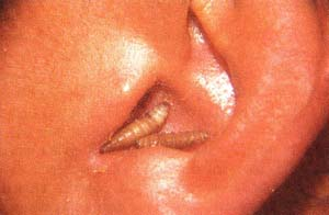 Larva saliendo del canal auditivo externo