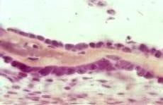Osteoblastos de forma poliédrica